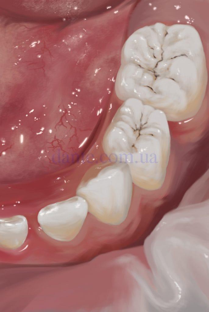 Развитие бактерий в фиссурах зубов