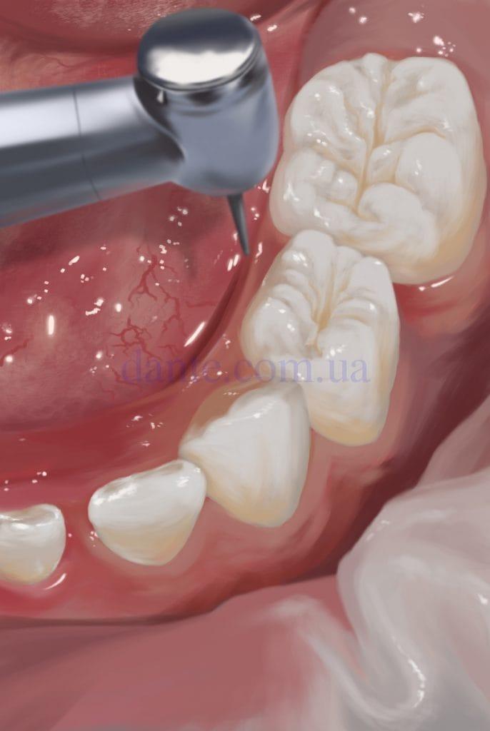 расширение фиссур зубов
