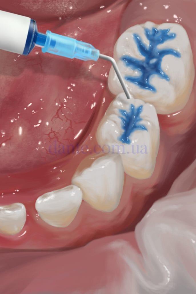 протравливание фиссур зубов