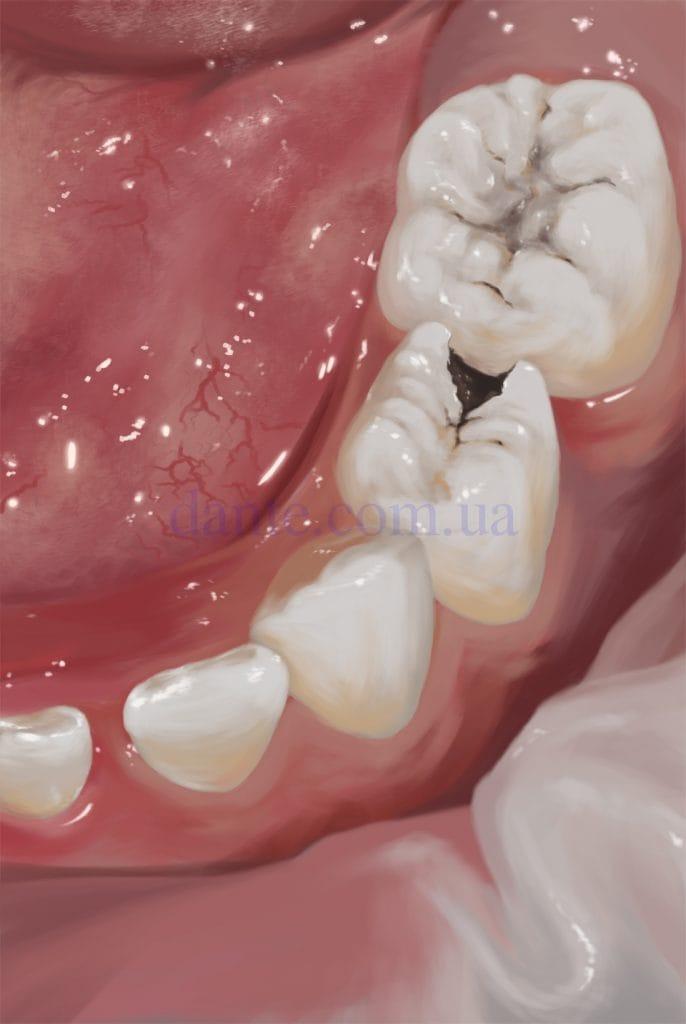 кариес на детском зубе