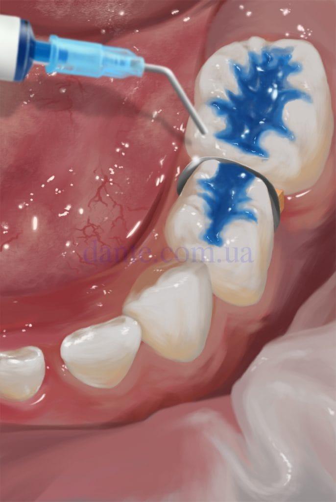 травление зуба