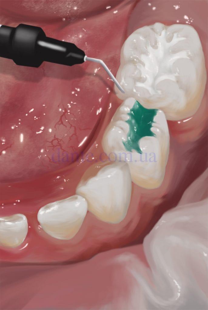 цветная зубная пломба