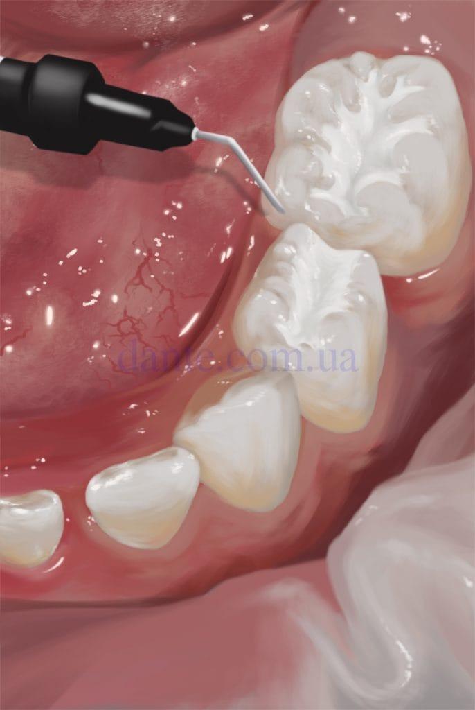 нанесение специального герметика на зуб
