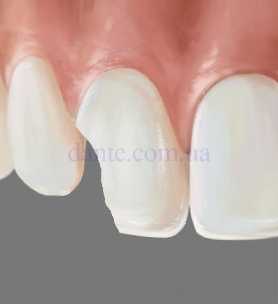 Осмотр перед реставрацией зубов