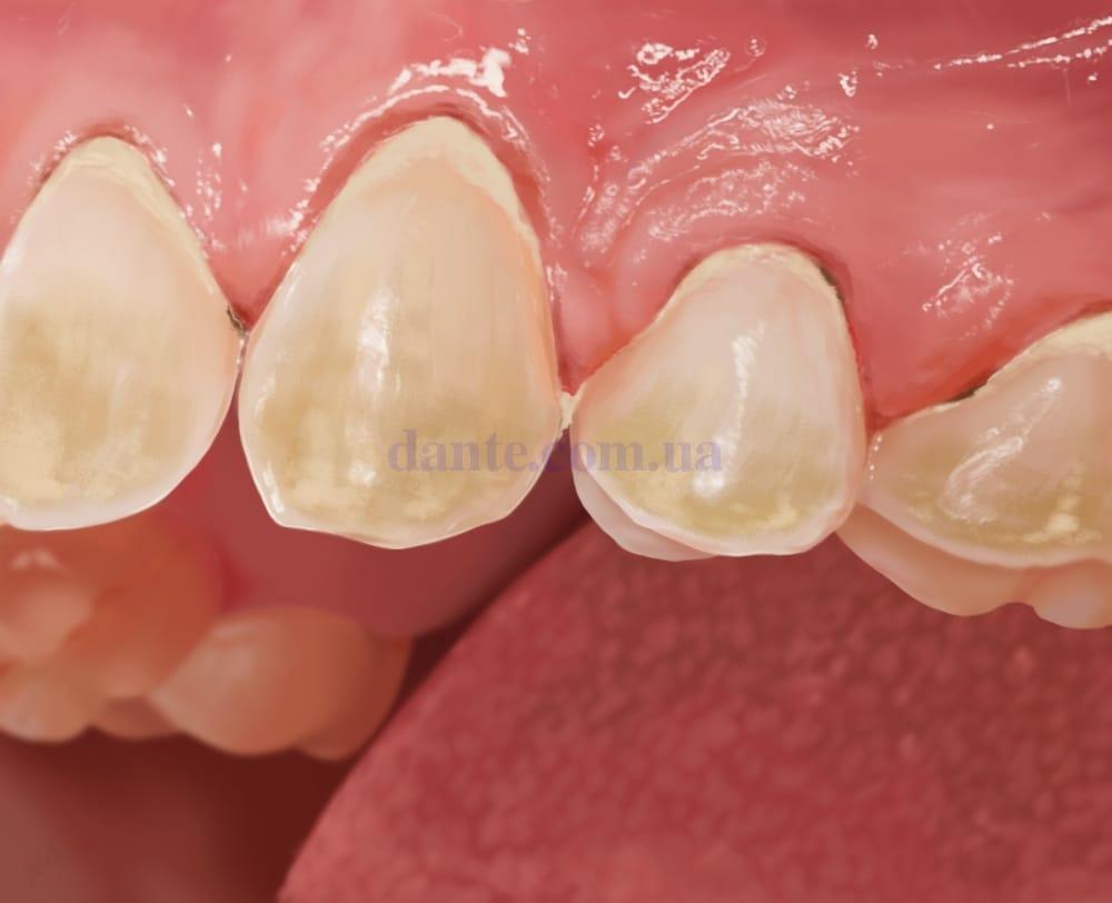 Зубы до очистки