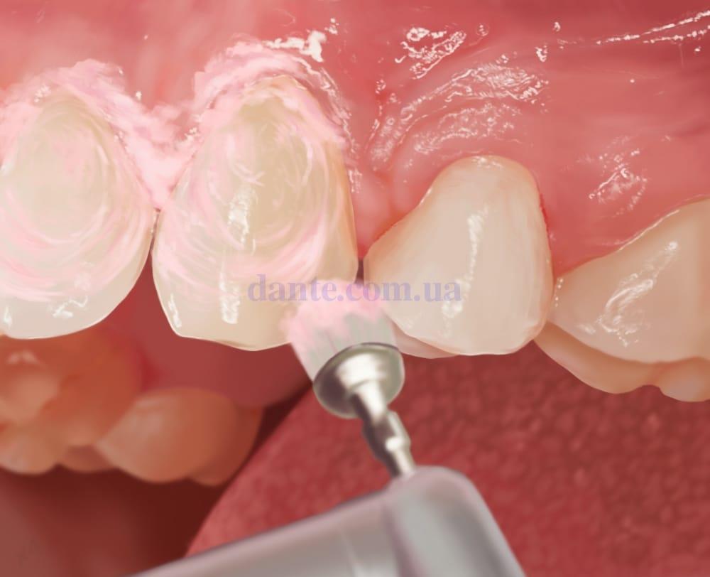 Полировка поверхности зубов