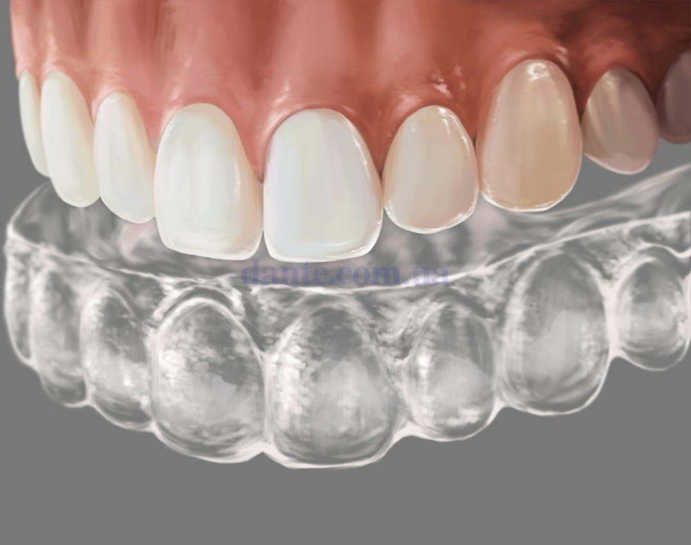 установка каппы на зубы