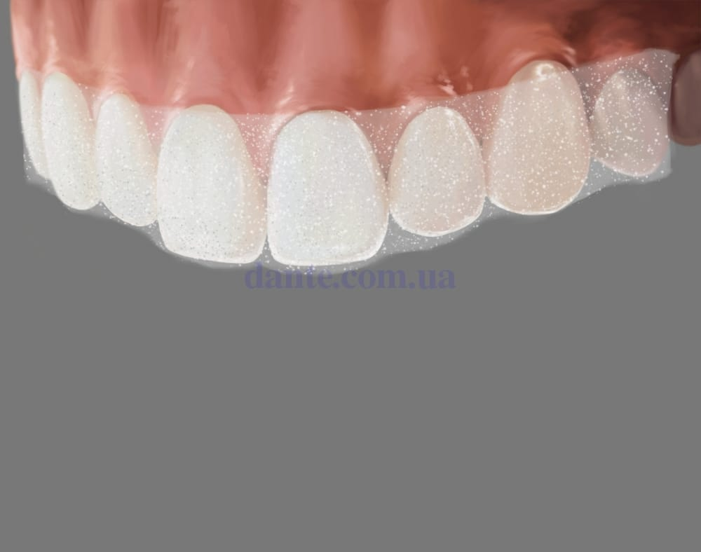 Отбеливающие полоски на зубы