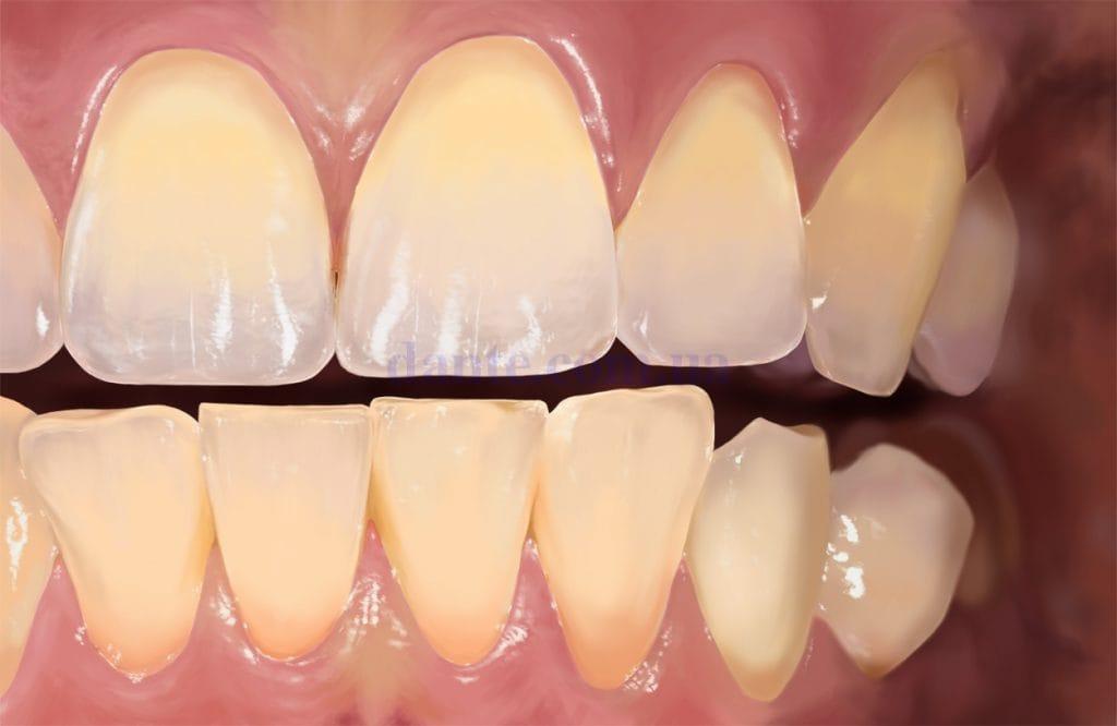 Процесс отбеливания зубов в стоматологии (2)
