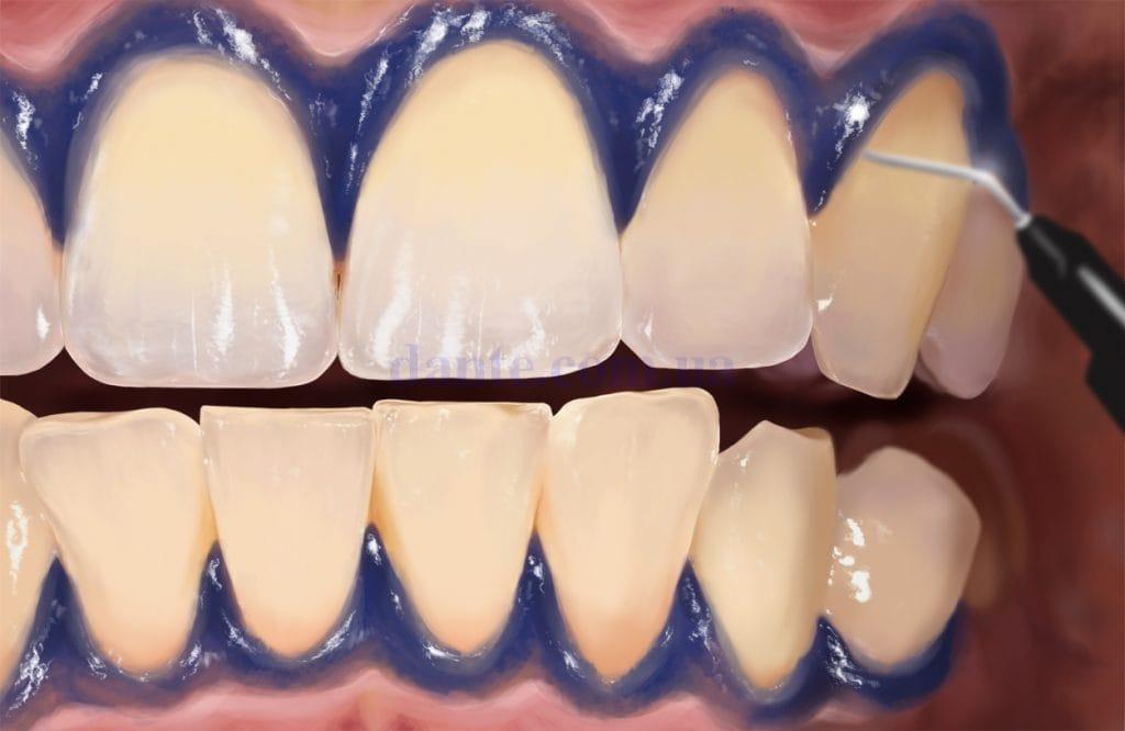 Процесс отбеливания зубов в стоматологии