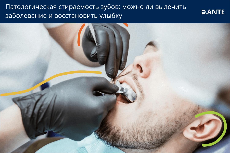 стираемость зубов причина