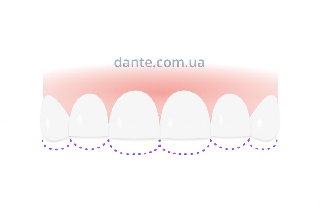 стираемость зуба