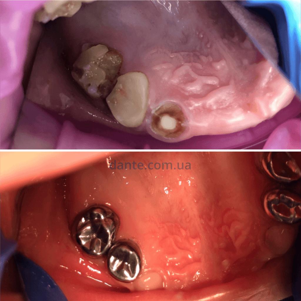 протезы на молочных зубах