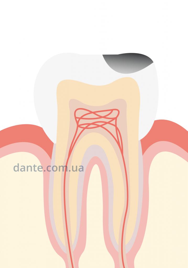 кариес на жевательном зубе