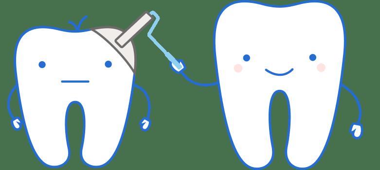 Серебрение зубов в Киеве | D.Ante