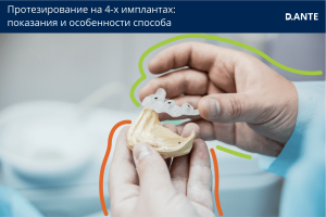 Особенности протезирования на 4-х имплантах