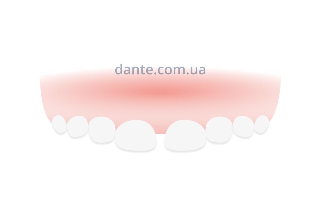 Ложная диастема, фото | D.Ante