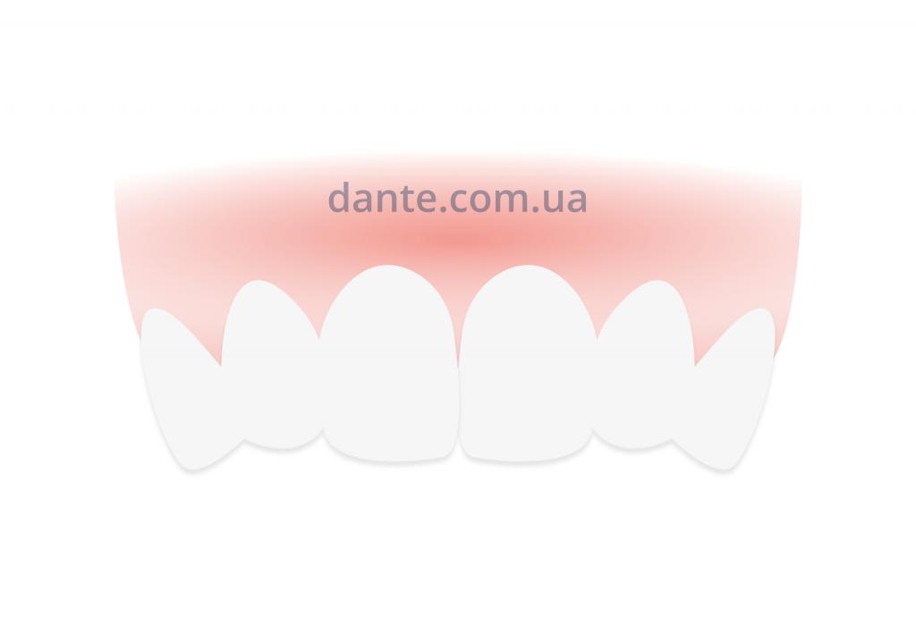 Нормальное положение зубов | D.Ante