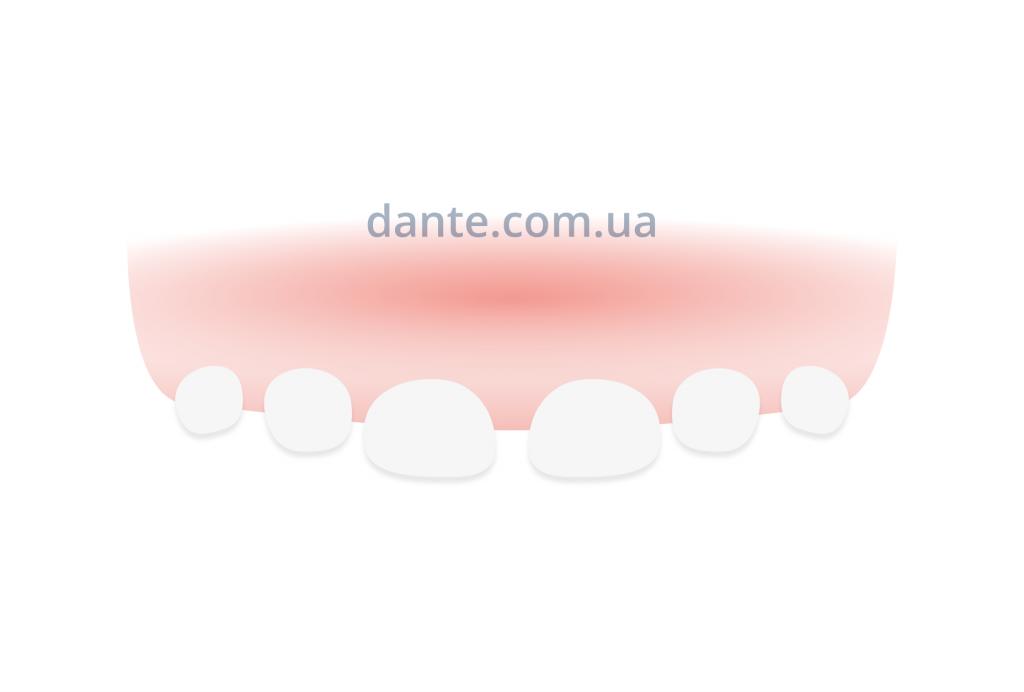 физиологическая трема, Киев | D.Ante
