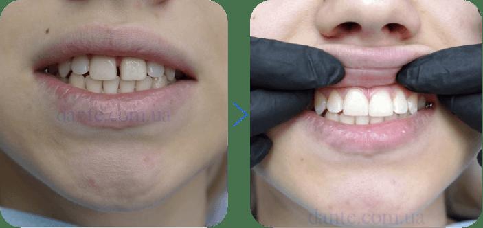 Диастема: до и после лечения | D.Ante