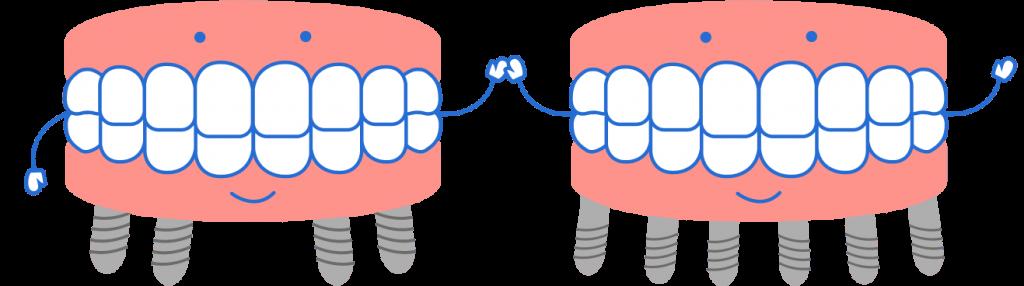 Протезирование на 4-х и 6-ти имплантах