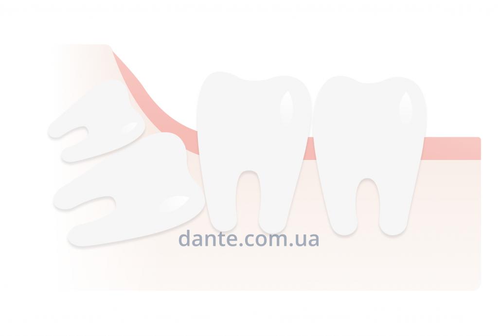 Полидентия зубов мудрости
