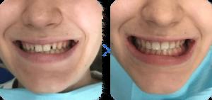 Зубные виниры (до-после)