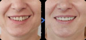 Как выглядят зубы с винирами