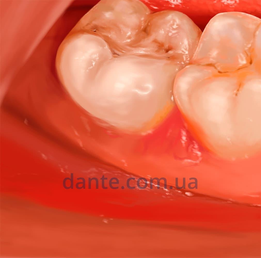 Пульпит. Восстановленный зуб