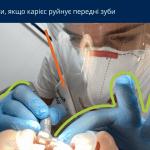 карієс передніх зубів