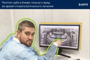 Рентген зуба в Киеве