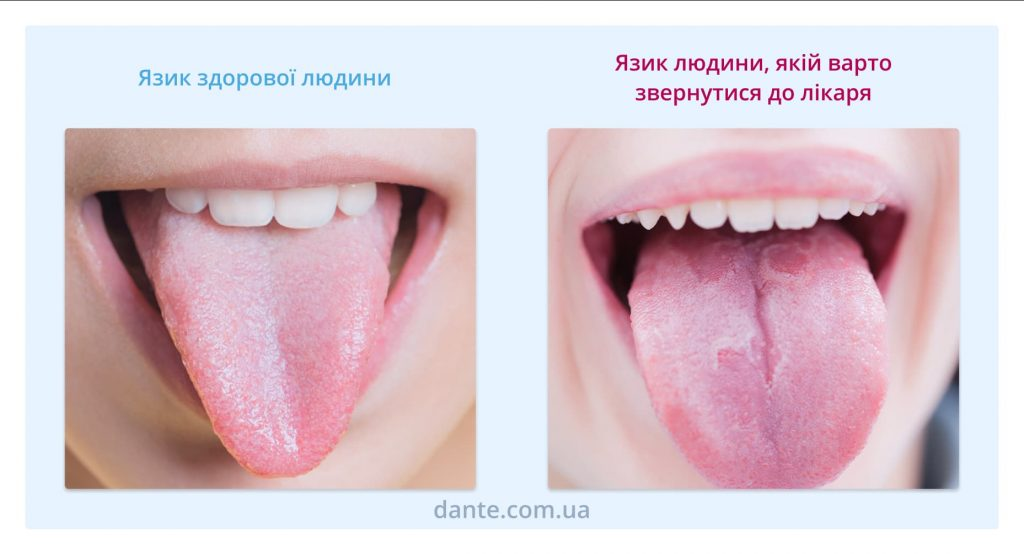 Нальот на язику — норма?