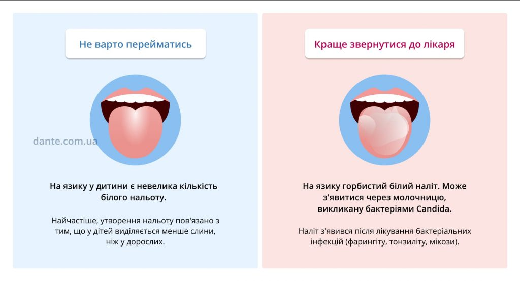 Чи треба перейматися через нальот на язику