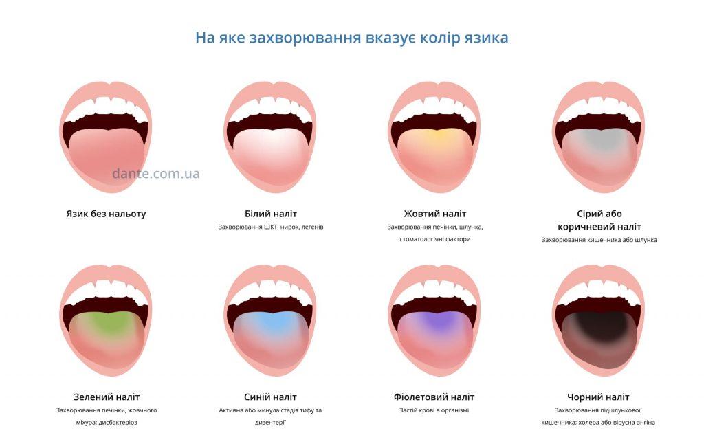 захворювання язика в картинках