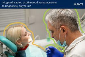 Фісурний карієс: деталі лікування
