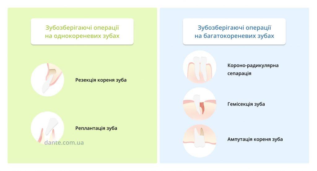 Види зубозберігаючих операцій