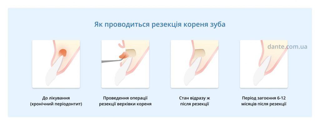 резекція кореня зуба