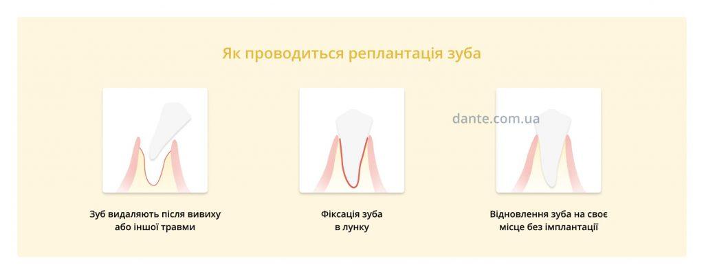 реплантація зуба
