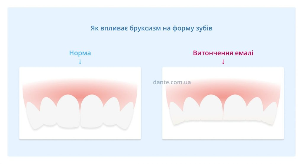Як впливає бруксизм на зуби