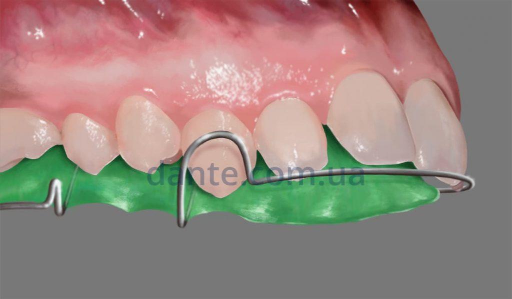 примерка пластинки на зубы для детей