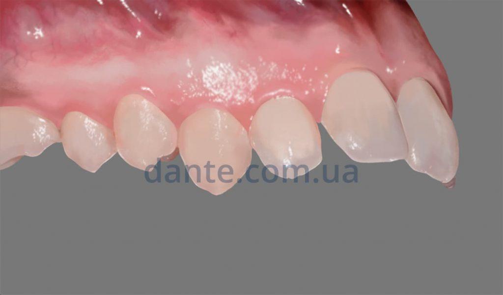 пластинки на зубы для детей