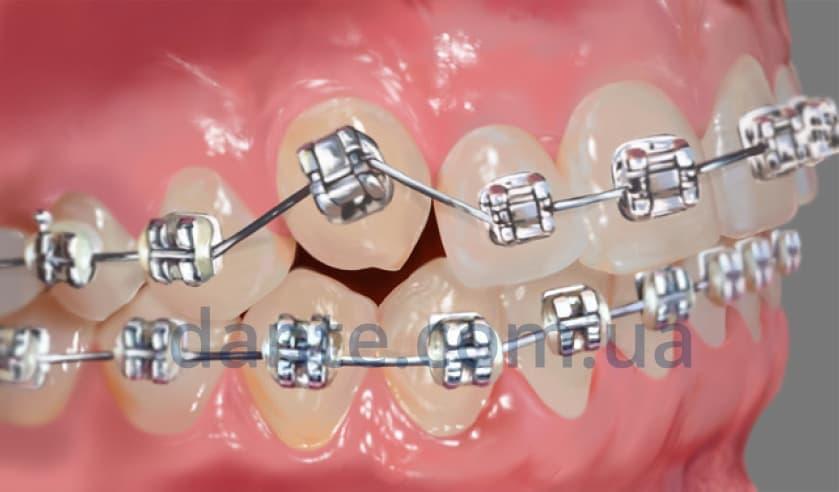 Этапы ортодонтического лечения: установка керамических брекетов