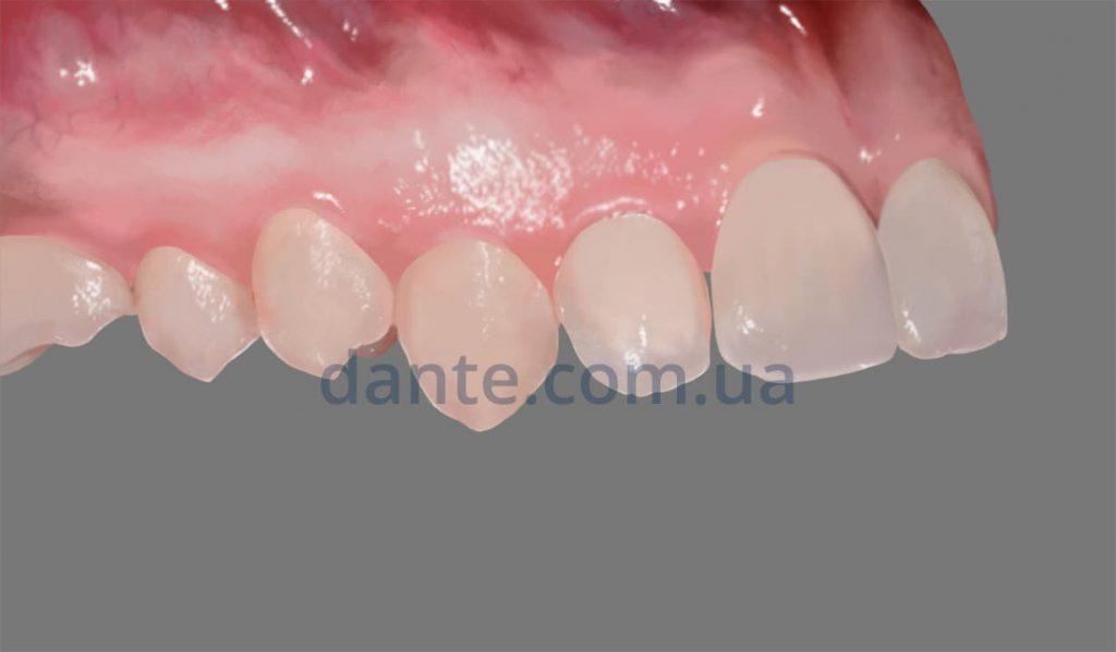 результат ношения пластинки на зубах