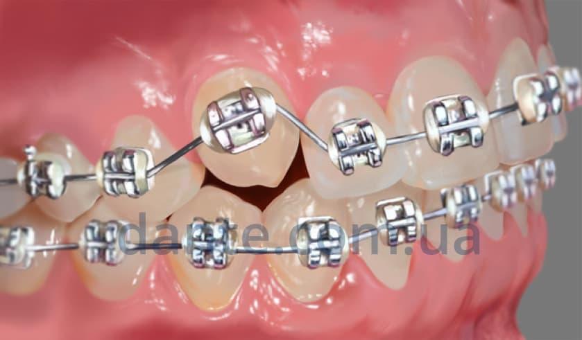 Этапы ортодонтического лечения: установка брекетов