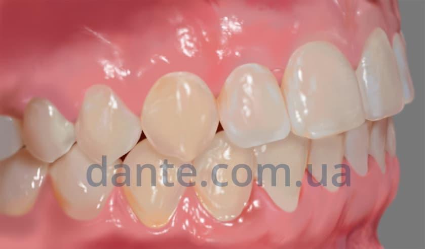 Этапы ортодонтического лечения: результат