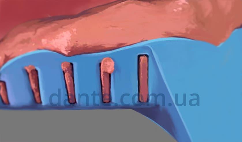 Этапы ортодонтического лечения: снятие оттиска для установки керамических брекетов