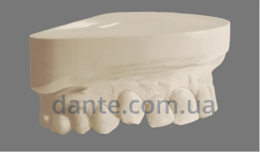Этапы ортодонтического лечения: изготовление модели челюсти для установки керамических брекетов
