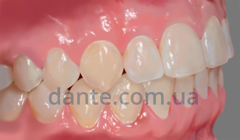 результат выравнивания зубов керамическими брекетами