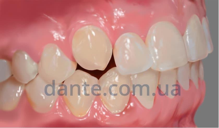положение зубов до ортодонтического лечения