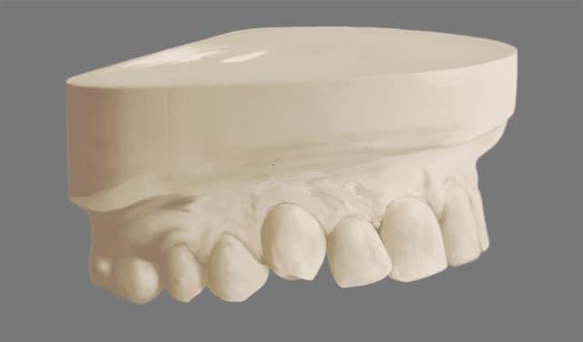 Изготовление гипсовой модели челюстей перед ортолечением